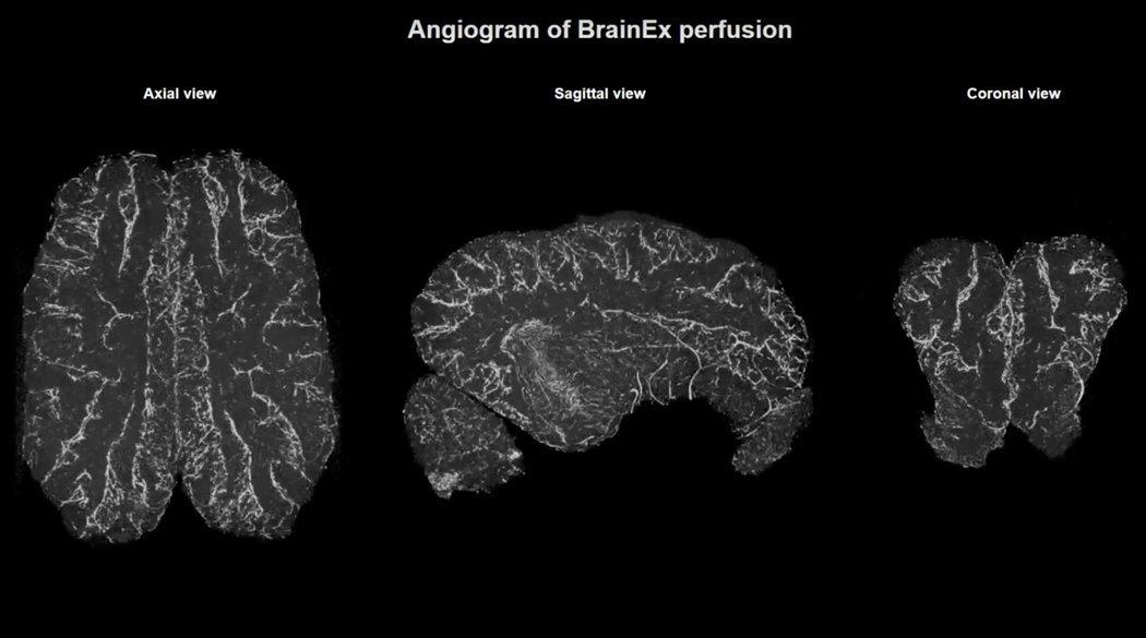 brainex perfusion