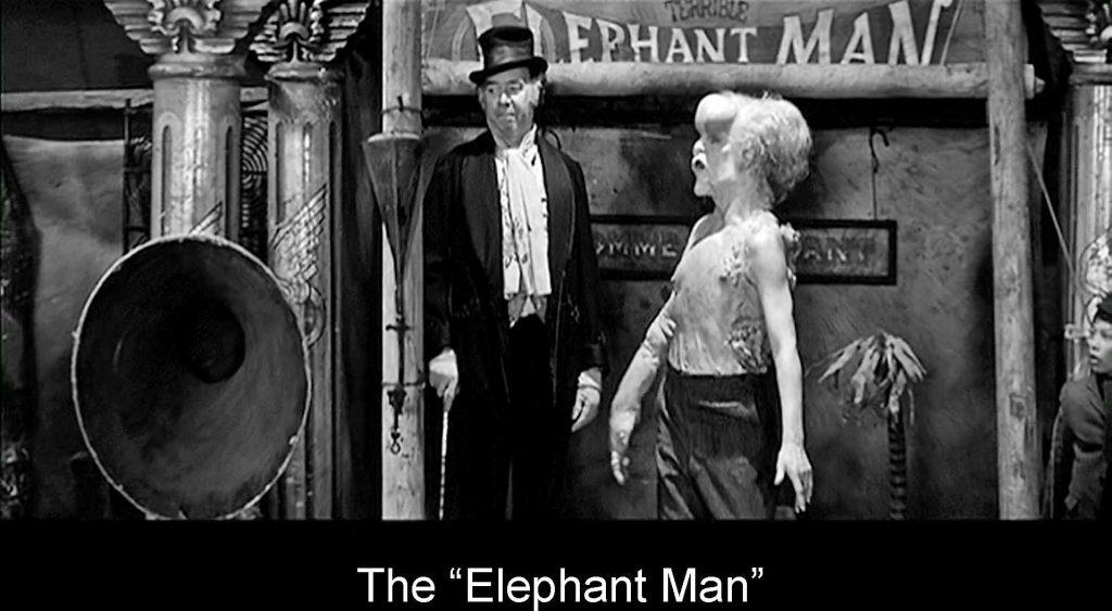Elephan man