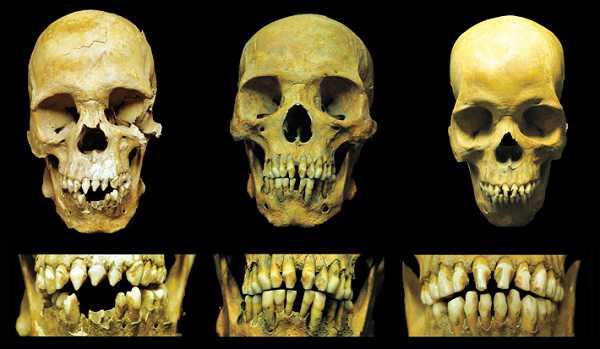 Mexico City Skulls Teeth Combo